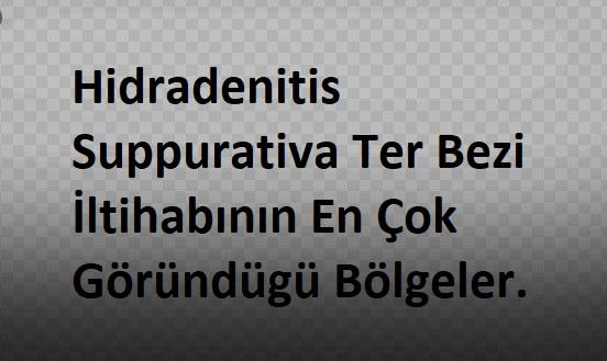 Hidradenitis Suppurativa Ter Bezi İltihabının En Çok Göründügü Bölgeler.